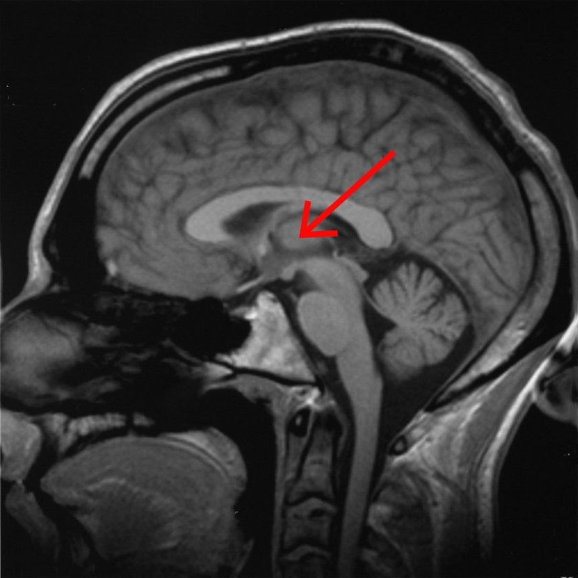 The central lateral thalamus is found deep in the center of the brain, close to the brain stem